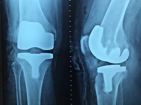 Best Orthopedic Surgeon in Pakistan For Knee Treatment