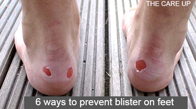 6 ways to prevent blister on feet