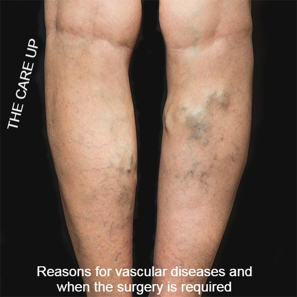 Reasons for vascular diseases and when the surgery is required