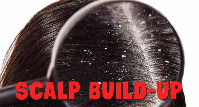 How to clean scalp build-up