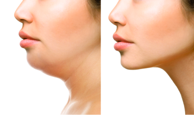 Kybella: Solution to remove fat under the chin?