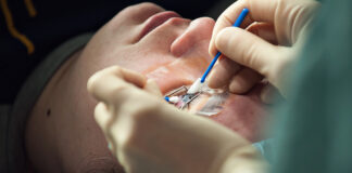 How Much Does Lasik Eye Surgery Cost?
